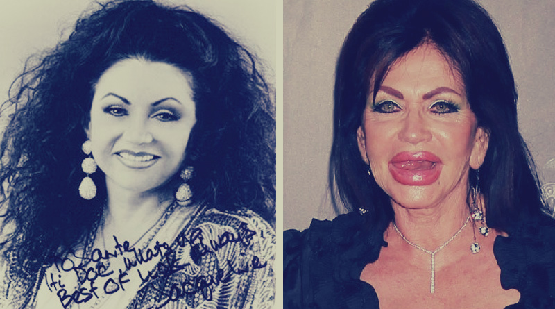 1dadf89732354 7 مشاهير «شوهتهم» عمليات التجميل  والدة سيلفستر ستالون «جرّبت» كل شيء في  وجهها