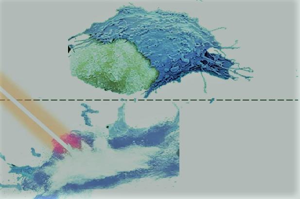 """علماء بريطانيون يبتكرون """"قنبلة سكر"""" تقضي على الخلايا السرطانية في ثوانٍ"""