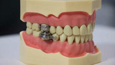 «قفل الأسنان».. أول جهاز في العالم لمحاربة السمنة