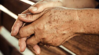 كيفية التخلص من بقع الشيخوخة على يديك وذراعيك ووجهك