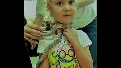 ثعبان يلدغ طفلة عمرها 5 سنوات
