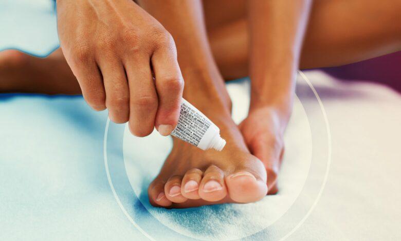 ما هي تلك البقع البيضاء على أظافر قدميك؟