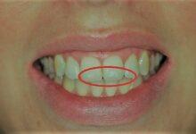 أسباب ظهور بقع بيضاء على الأسنان و5 طرق لتجنبها